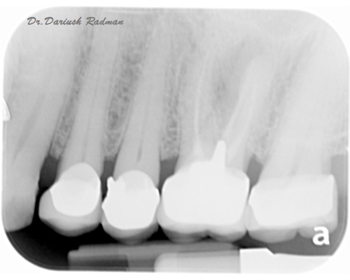 Dental treatment photo galleries