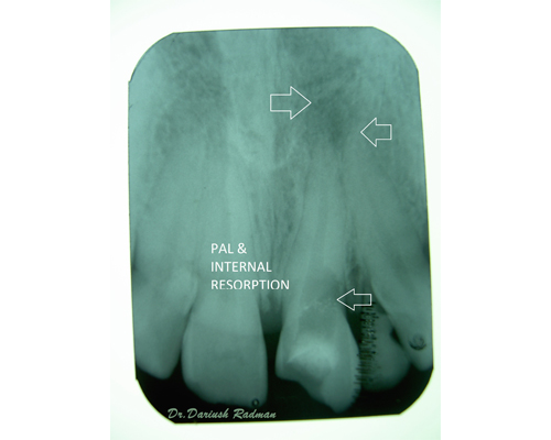 Root canal therapy and treatments