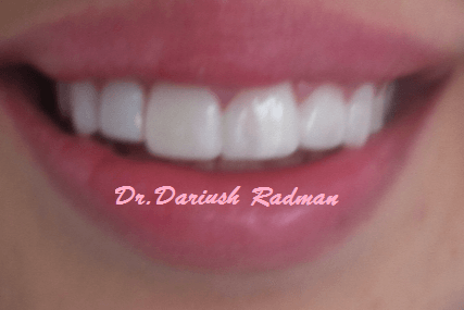 Dental care before and after photo
