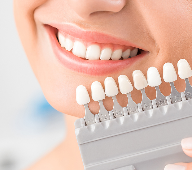 Cosmetic Veneers in Thornhill