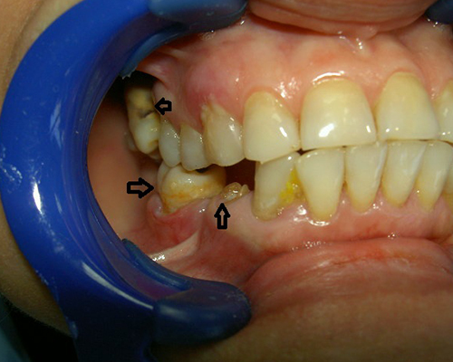 Full Mouth Dental implant treatments