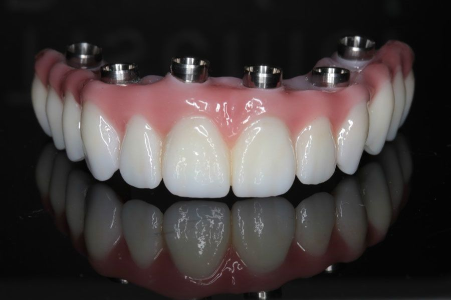 Full Mouth Implant Solutions
